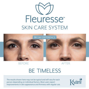 Kyani Fleuresse Before and After